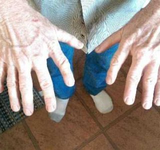 A Man With Extra Fingers (3 photos)