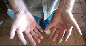 A Man With Extra Fingers (3 photos) 3