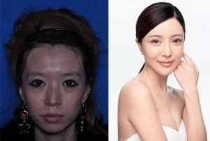 Chinese Women Before and After Plastic Surgery Procedures (19 photos) 1