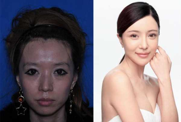 plastic-surgery-in-china (1)