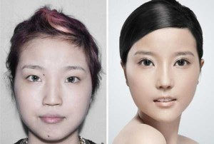 Chinese Women Before and After Plastic Surgery Procedures (19 photos) 10