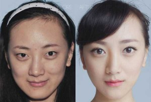 Chinese Women Before and After Plastic Surgery Procedures (19 photos) 12