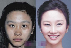 Chinese Women Before and After Plastic Surgery Procedures (19 photos) 14