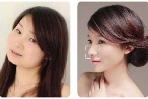Chinese Women Before and After Plastic Surgery Procedures (19 photos) 15