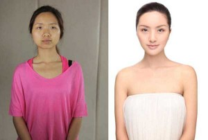 Chinese Women Before and After Plastic Surgery Procedures (19 photos) 16