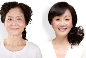 Chinese Women Before and After Plastic Surgery Procedures (19 photos) 17
