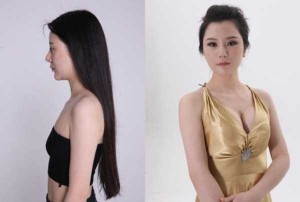 Chinese Women Before and After Plastic Surgery Procedures (19 photos) 18