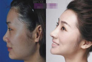 Chinese Women Before and After Plastic Surgery Procedures (19 photos) 2