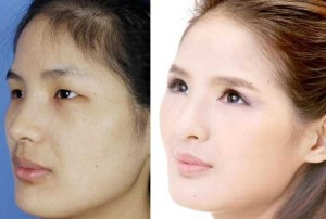 Chinese Women Before and After Plastic Surgery Procedures (19 photos) 3