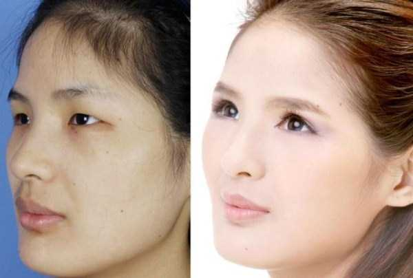 plastic-surgery-in-china (3)