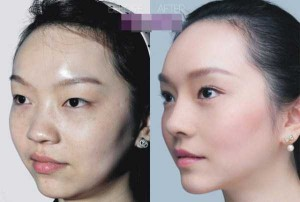 Chinese Women Before and After Plastic Surgery Procedures (19 photos) 5