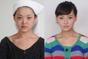 Chinese Women Before and After Plastic Surgery Procedures (19 photos) 6