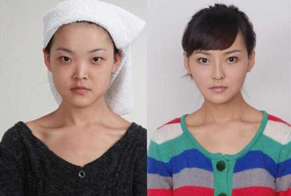 plastic-surgery-in-china (6)