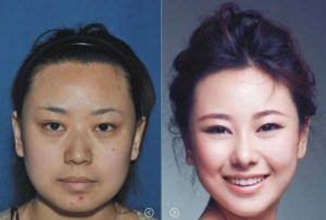 Chinese Women Before and After Plastic Surgery Procedures (19 photos) 7
