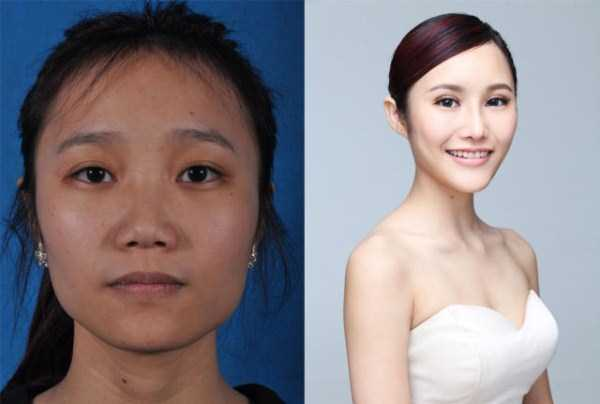 plastic-surgery-in-china (8)