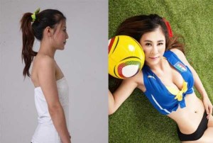 Chinese Women Before and After Plastic Surgery Procedures (19 photos) 9