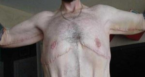 People With Excess Skin (28 photos) 11