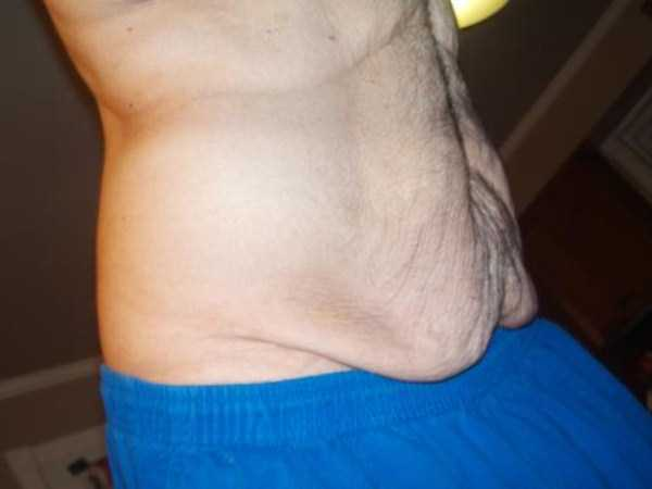 weight-loss-excess-skin (18)
