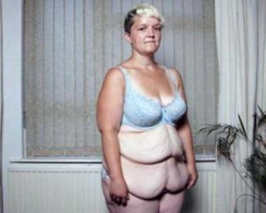 People With Excess Skin (28 photos) 19