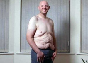People With Excess Skin (28 photos) 2