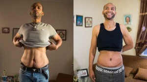 People With Excess Skin (28 photos) 22