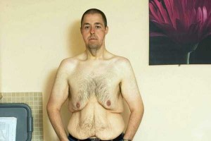 People With Excess Skin (28 photos) 27
