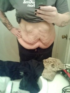People With Excess Skin (28 photos) 28