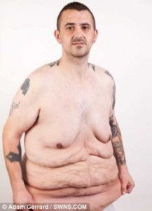 People With Excess Skin (28 photos) 5