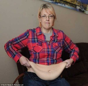 People With Excess Skin (28 photos) 7