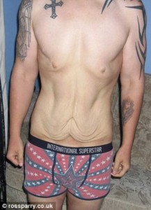 People With Excess Skin (28 photos) 8