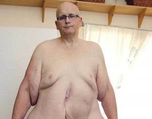 People With Excess Skin (28 photos) 9