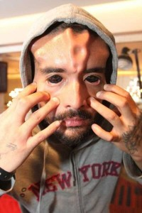 The Craziest Nose Modification You've Ever Seen (13 photos) 11