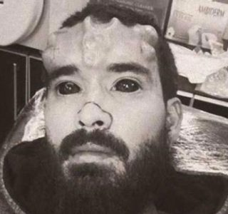The Craziest Nose Modification You've Ever Seen (13 photos)