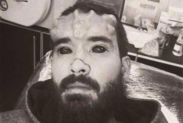 The Craziest Nose Modification You've Ever Seen (13 photos) 14