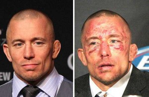 Totally Disfigured Faces of UFC Fighters (15 photos) 1