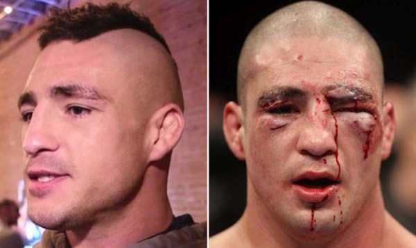 ufc-fighters-before-and-after-the-fight (10)
