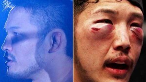 Totally Disfigured Faces of UFC Fighters (15 photos) 11