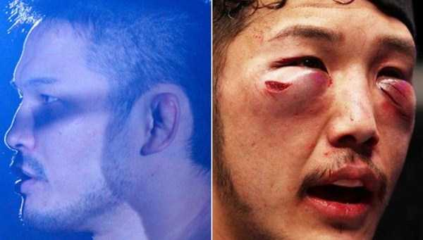 ufc-fighters-before-and-after-the-fight (11)