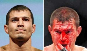 Totally Disfigured Faces of UFC Fighters (15 photos) 12