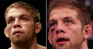 Totally Disfigured Faces of UFC Fighters (15 photos) 13
