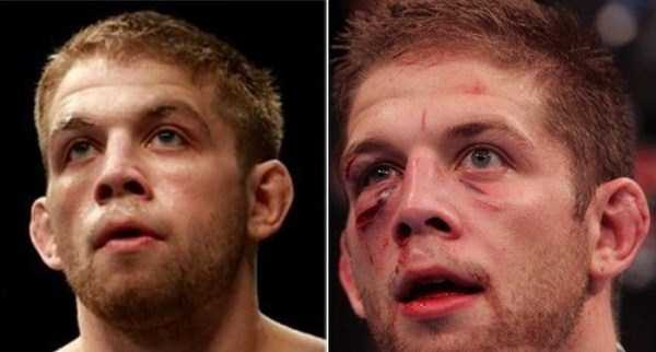 ufc-fighters-before-and-after-the-fight (13)