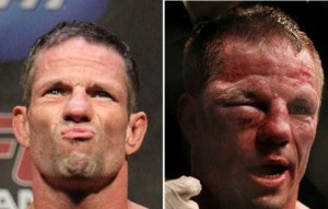 Totally Disfigured Faces of UFC Fighters (15 photos) 14