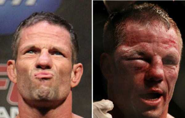 ufc-fighters-before-and-after-the-fight (14)