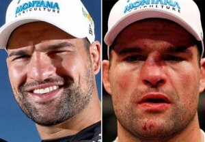 Totally Disfigured Faces of UFC Fighters (15 photos) 15