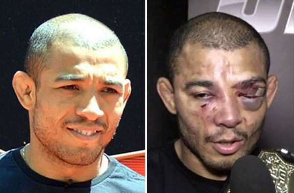 ufc-fighters-before-and-after-the-fight (2)