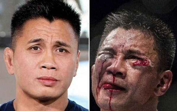 Totally Disfigured Faces of UFC Fighters (15 photos) 3