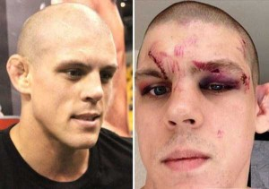 Totally Disfigured Faces of UFC Fighters (15 photos) 6