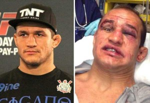 Totally Disfigured Faces of UFC Fighters (15 photos) 7