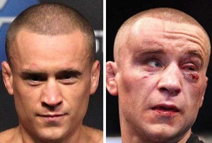 Totally Disfigured Faces of UFC Fighters (15 photos) 8