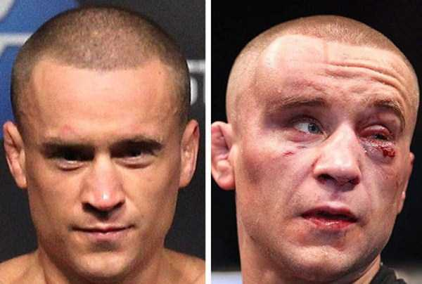 ufc-fighters-before-and-after-the-fight (8)